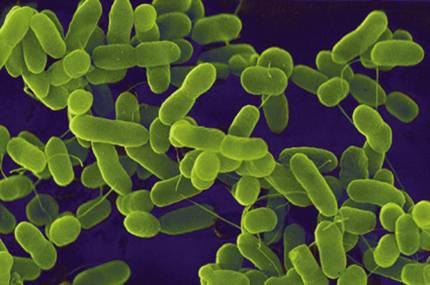 Menenjit beyni saran zarların iltihabıdır bu iltihaba mikroplar